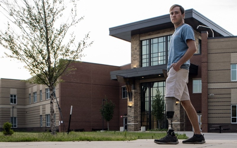 Teen with a prosthetic leg